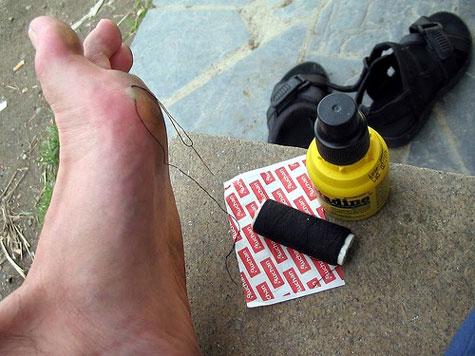 como curar ampollas en pies